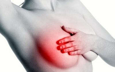 What is mastitis?